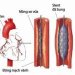Khi nào cần đặt stent mạch vành?