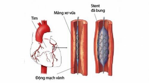 Stent mạch vành được thực hiện trong trường hợp mạch vành bị chít hẹp khiến máu không lưu thông