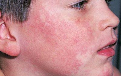 Bệnh lupus ban đỏ có nguy hiểm như thế nào?