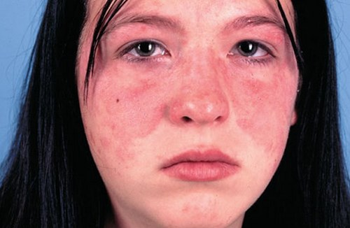 lupus-ban-do-2