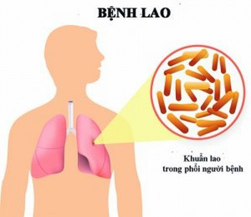 Mỗi năm Việt Nam có 17.000 người tử vong vì bệnh lao