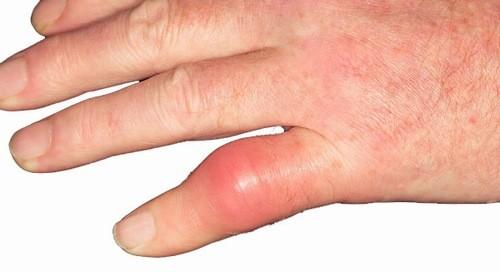 Sưng đỏ ngón tay có thể là dấu hiệu cảnh báo bệnh lý cần được phát hiện sớm và điều trị