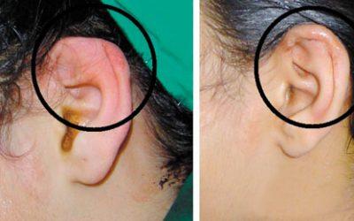 Cách chữa bệnh viêm sụn vành tai HIỆU QUẢ tốt nhất