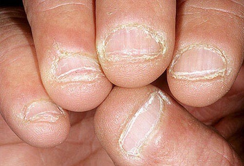 Nấm khiến móng tay dễ mủn và dễ gãy. Bên dưới móng cũng có thể bị tổn thương và móng bị tróc.