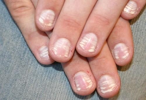 Khi viêm vùng chân móng sẽ rất đau, sưng đỏ và có mủ, ngứa rất nhiều vùng quanh móng.