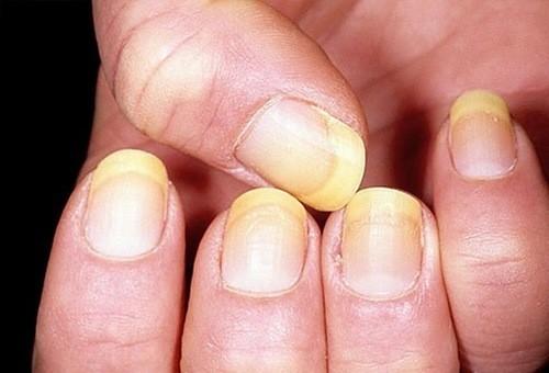 Nhiễm nấm móng có thể bắt đầu như một đốm trắng hoặc vàng dưới các đầu móng tay hoặc móng chân.