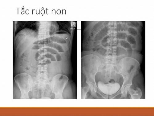 Tắc ruột non cần được phát hiện sớm và điều trị hiệu quả