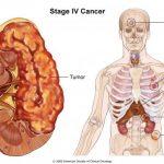 Ung thư gan giai đoạn cuối biểu hiện như thế nào?