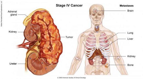 Ung thư gan giai đoạn cuối