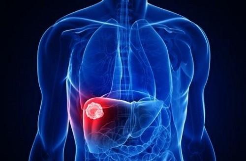 Ung thư gan giai đoạn đầu có chữa được không