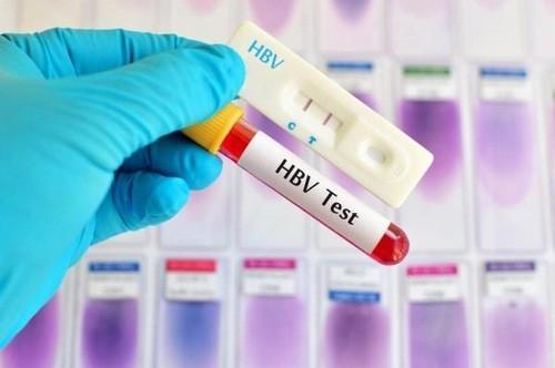 Xét nghiệm viêm gan B giúp chẩn đoán bạn có dương tình với virus không