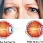 5 bệnh về mắt thường gặp ở người già