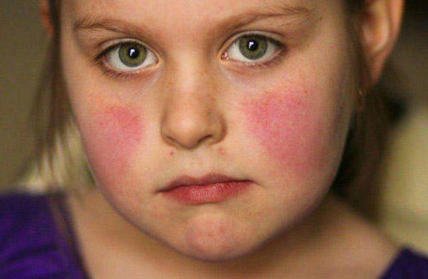 Lupus là gì?