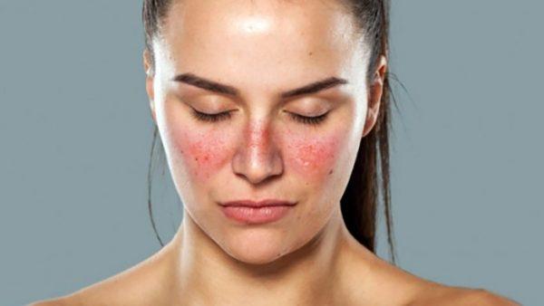 Hiện nay nguyên nhân và cơ chế gây bệnh Lupus ban đỏ chưa được xác định rõ ràng.