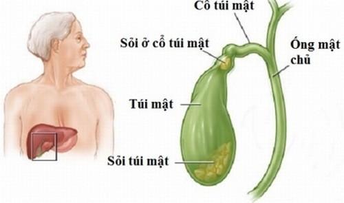 Sỏi mật là bệnh lý phổ biến cần được phát hiện sớm và điều trị hiệu quả