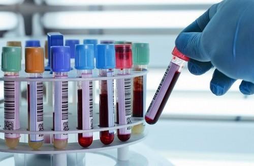 Cần xét nghiệm máu định kỳ thường xuyên