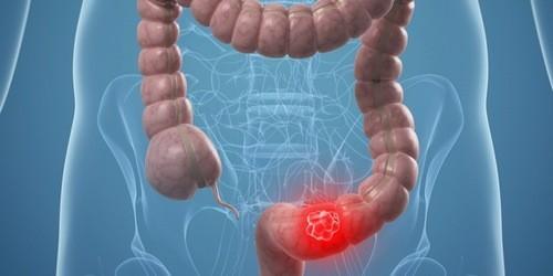 Đi ngoài ra máu có thể do polyp trực tràng