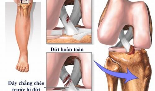 Đứt dây chằng chéo trước cần được phát hiện và điều trị hiệu quả