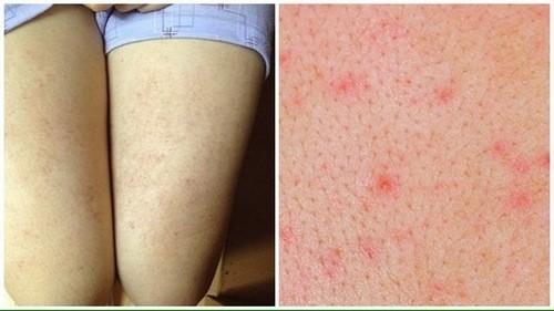Viêm lỗ chân lông là bệnh khá phổ biến