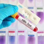Nên đi xét nghiệm viêm gan b ở đâu?