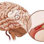 Nguyên nhân gây xuất huyết não bạn cần biết