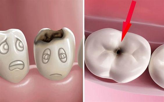Nguyên nhân sâu răng là do vi khuẩn gây sâu răng có sẵn trong miệng, chủ yếu là vi khuẩn Streptococcus Mutans