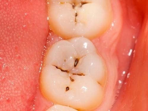 Sâu răng là bệnh lý phổ biến, có thể gặp ở mọi lứa tuổi