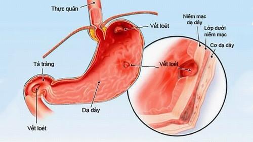 Phù nề dạ dày cần được phát hiện sớm và điều trị hiệu quả