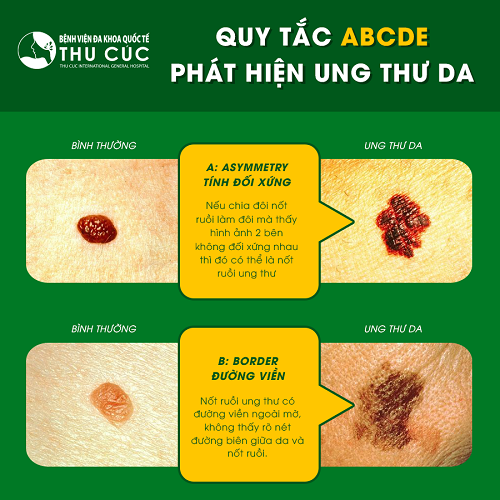 Nhận biết nốt ruồi có ung thư như thế nào?