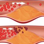 Tắc nghẽn mạch máu là gì?