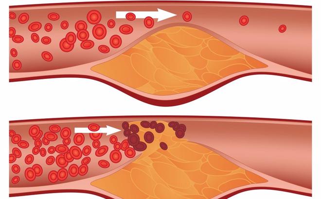 Tắc nghẽn mạch máu thường do mảng xơ vữa gây nên