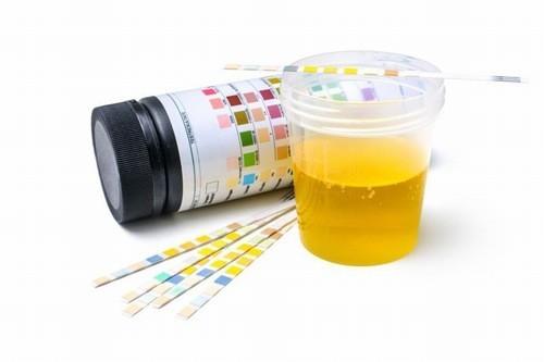Xét nghiệm nước tiểu cần thiết thực hiện định kỳ theo dõi sức khỏe của mẹ và thai nhi