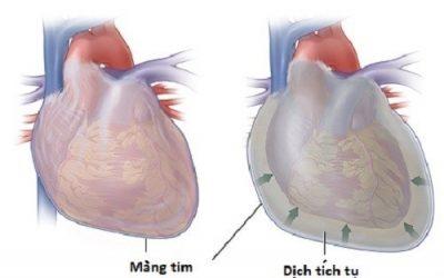 Tràn dịch màng tim có nguy hiểm không?