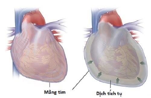 Tràn dịch màng ngoài tim đe dọa tính mạng người bệnh cần được phát hiện sớm và điều trị hiệu quả