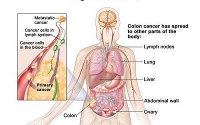 Ung thư đại tràng di căn sống được bao lâu?