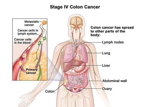 ung thư đại tràng di căn
