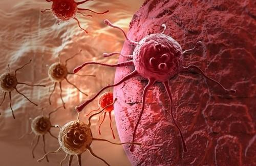 Ung thư di căn là gì