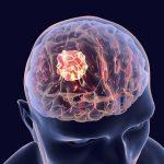 Ung thư não là bệnh gì?