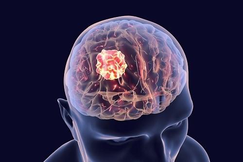 Ung thư não là bệnh gì