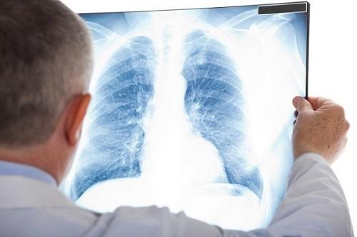 chụp x-quang phổi