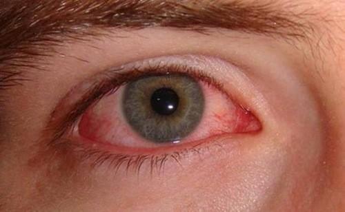 Viêm bờ mi là bệnh lý khá phổ biến nhiều người mắc phải. Vậy viêm bờ mi có lây không?