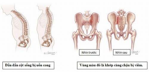 Viêm khớp cùng chậu có thể gây ảnh hưởng đến sức khỏe