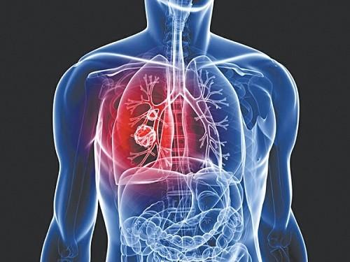 Xét nghiệm ung thư phổi ở đâu tốt