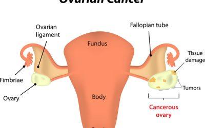 Ai dễ mắc ung thư buồng trứng nhất?