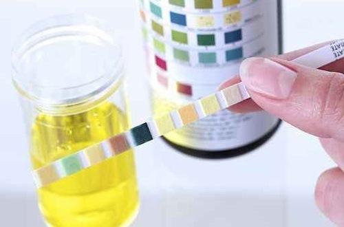 Bệnh viện Thu Cúc là địa chỉ xét nghiệm nước tiểu cho kết quả chính xác