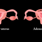 Bệnh lý lạc nội mạc tử cung là gì?