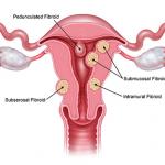 Bệnh nhân xơ tử cung là gì?