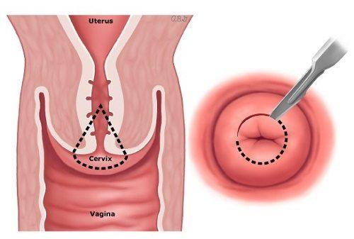 Bệnh ung thư cổ tử cung