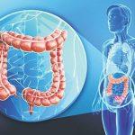Bệnh ung thư trực tràng sống được bao lâu?