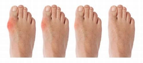 Dấu hiệu bệnh gout giai đoạn đầu